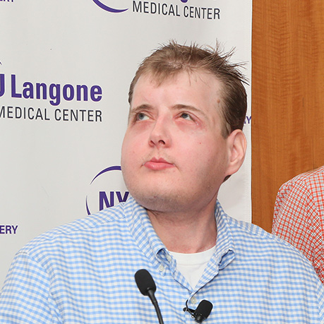 NYU Langone Medical Center: The World's Most Extensive Face Transplant, One Year Later