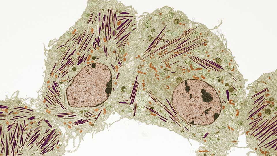 Lung Cell in Mouse with Gaucher's Disease