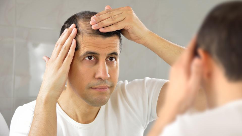 Hair Loss Nyu Langone Health
