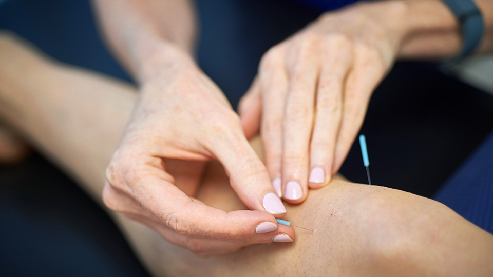 Healthcare Professional Administering Acupuncture Treatment