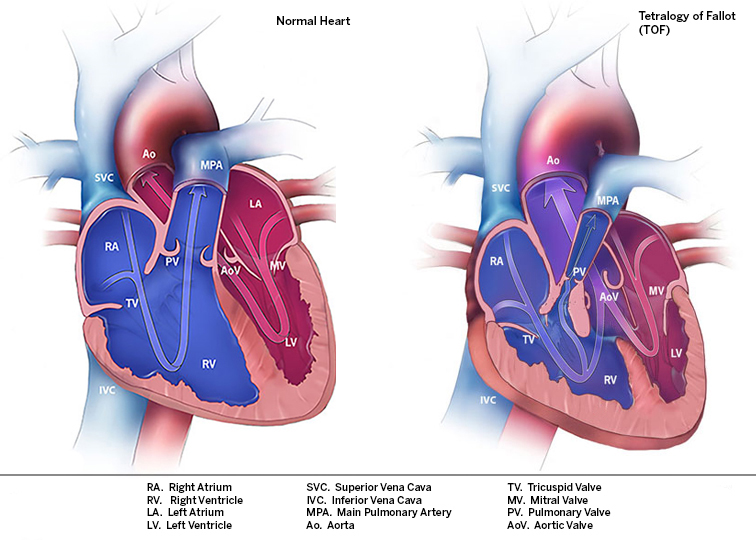 Images of Normal Heart Anatomy and Tetralogy of Fallot Anatomy