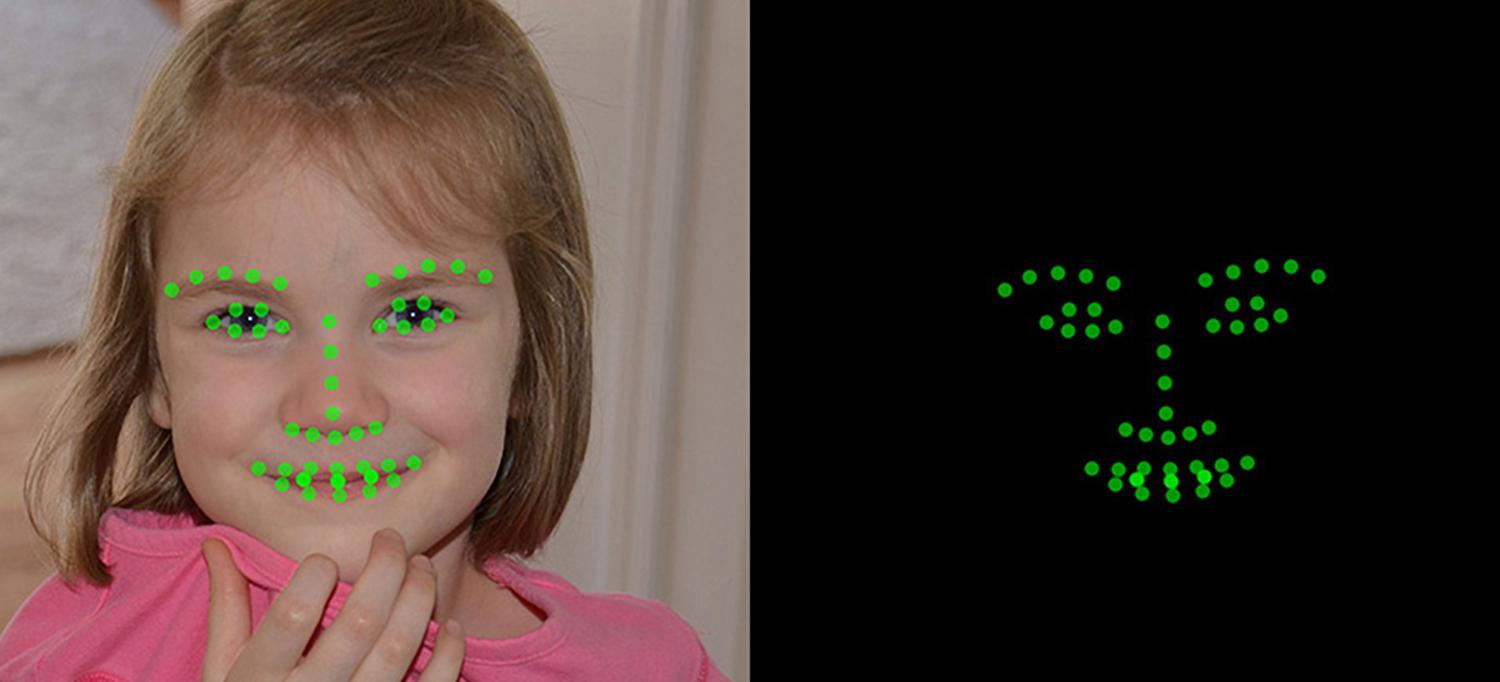 Child's Face Is Screened for Autism