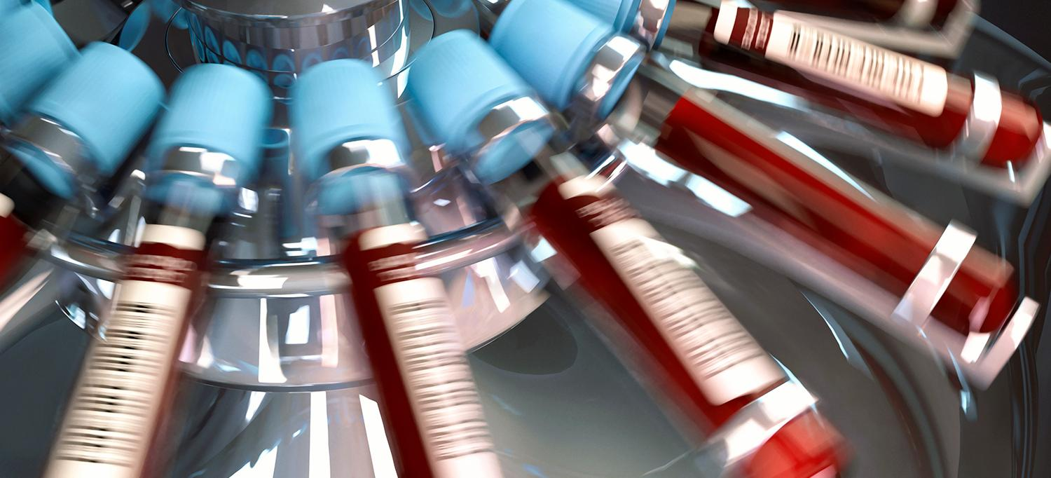 Experimental Blood Test May Accurately Screen for Post