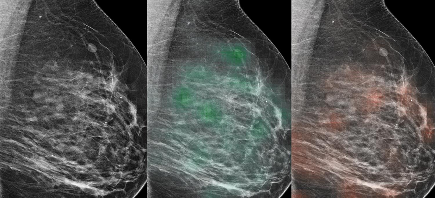 Mammography Results