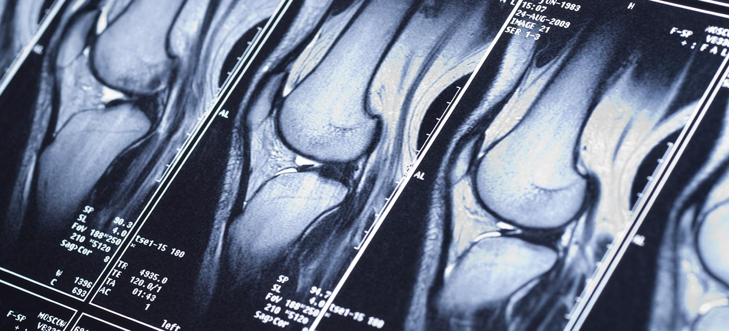 MRI Results from Knee Scan