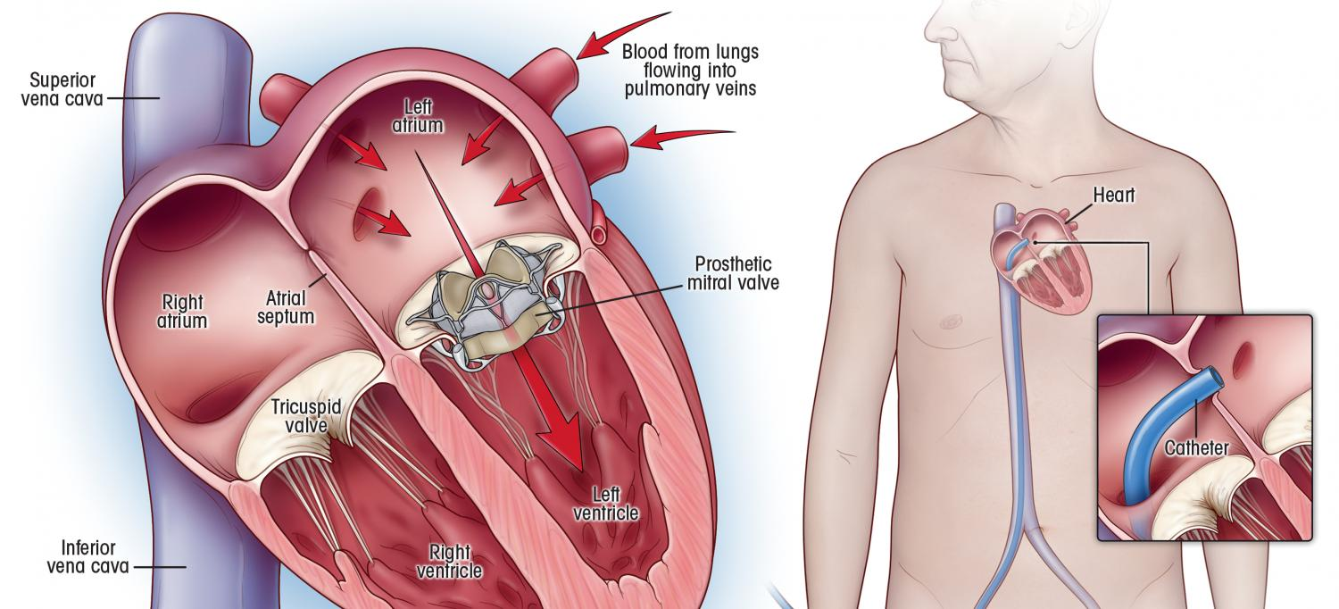 Mitral Valve Replacement Illustration