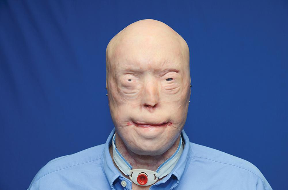 Patrick Hardison Before His Face Transplant Procedure