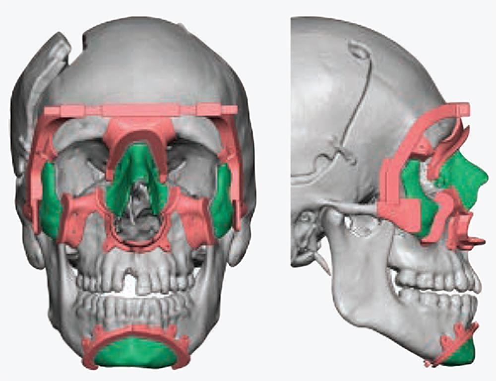 Face Transplant Surgical Cutting Guides
