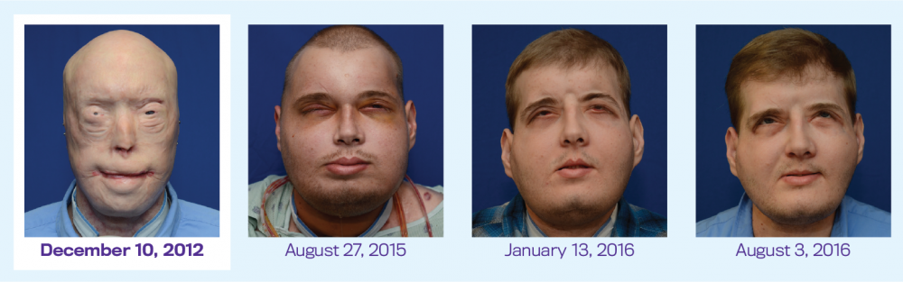 A Year After His Landmark Surgery A Face Transplant Recipient Reflects On His New Life Nyu Langone News