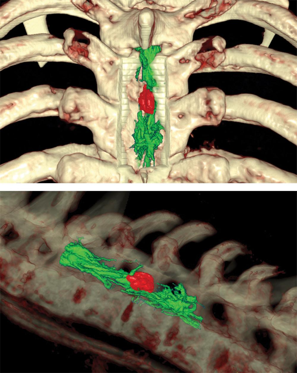Three-dimensional Imaging of the Intradural Intramedullary Cavernoma
