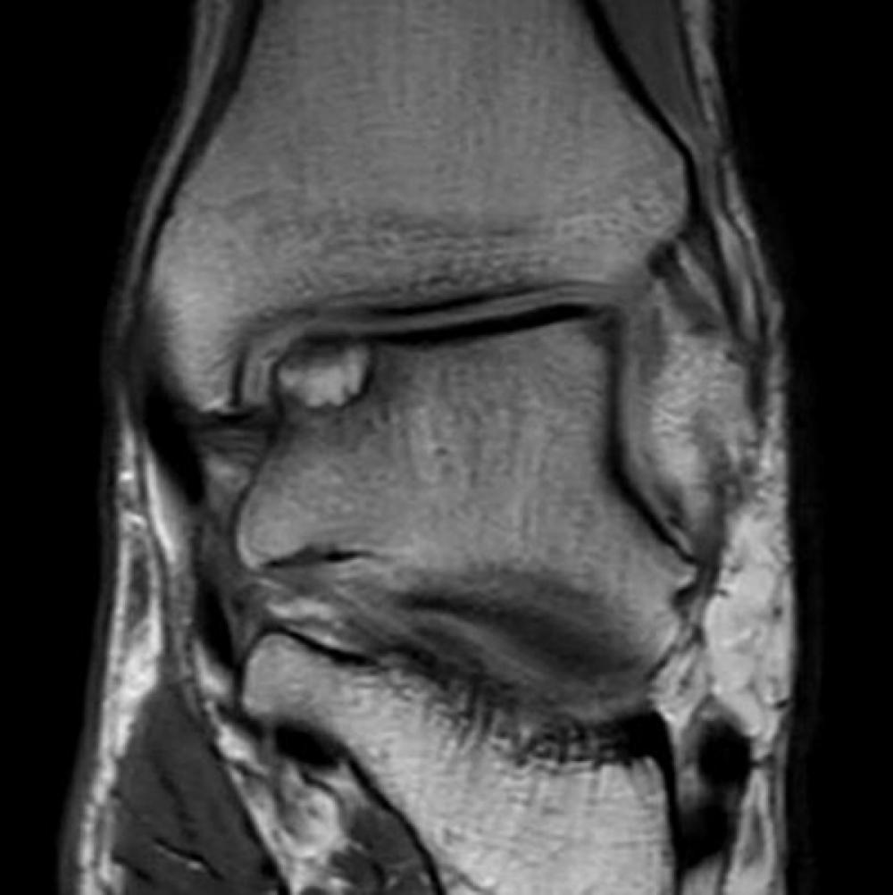 Preoperative imaging of ankle
