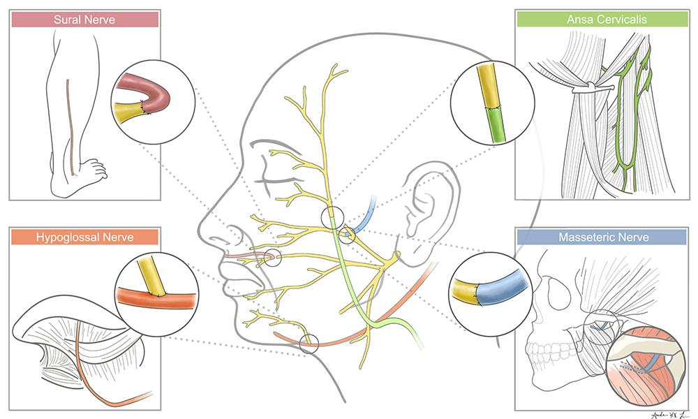 Illustration of the Facial Nerve